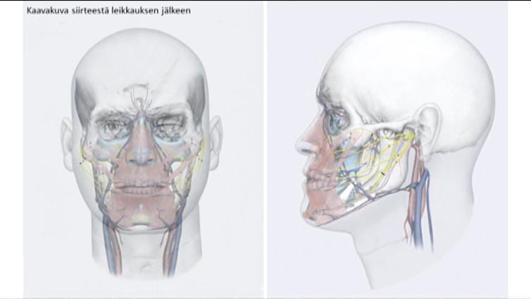 Pohjoismaiden ensimmäinen kasvojensiirto vaati yli 30 hengen leikkaustiimin – ulkonäkö ei siirry kasvojen myötä